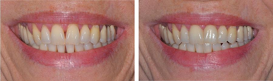 Zwischen den schneidezähnen grosse zahnlücke Lücke zwischen