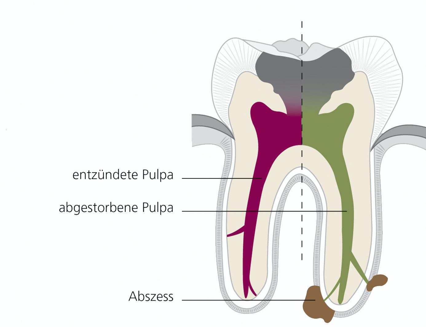 Wurzelbehandlung: Zahnarzt Köln, Maarweg